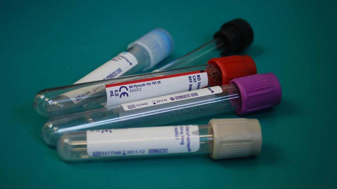 blood-tests